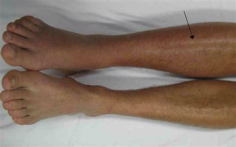 calf muscle lump picture 5
