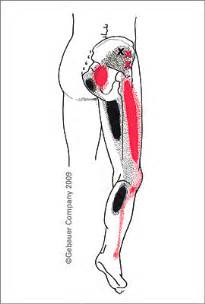 facet joint dysfunction picture 6