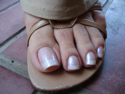 woman long toenail picture 13