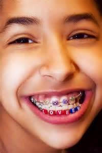 childrens braces for teeth picture 14