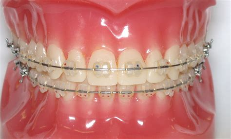 clear teeth brace picture 9