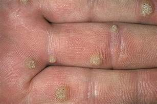 warts in the palm of your hand picture 3