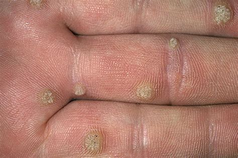 hypnosis treatment of warts picture 1