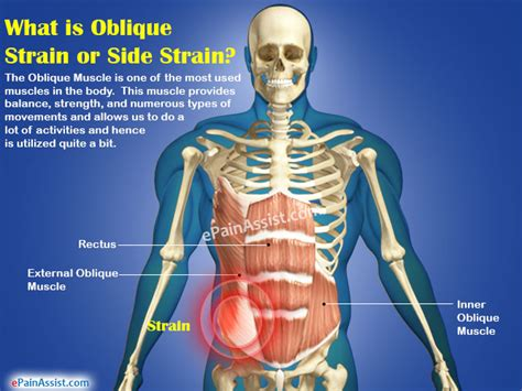 muscle pain in stomach when el movement picture 2