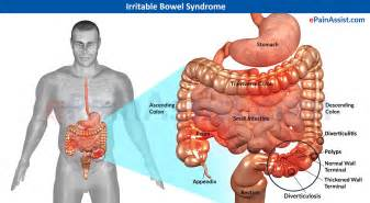symptoms of irriatable bowel syndrome picture 1
