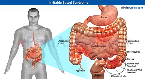 about colon problems for men picture 3