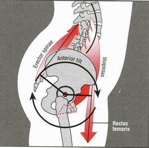 what are the symptoms of a tight pelvic picture 12