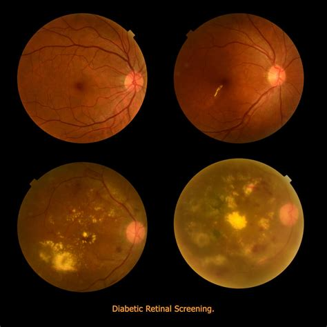 free diabetic retina treatment in chicago illinoise picture 6