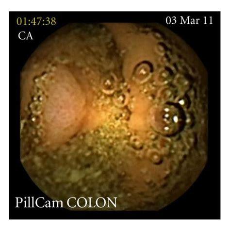 colon polpys picture 6