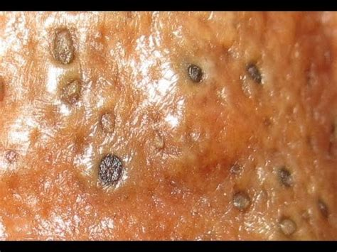 dissolving keratin picture 9