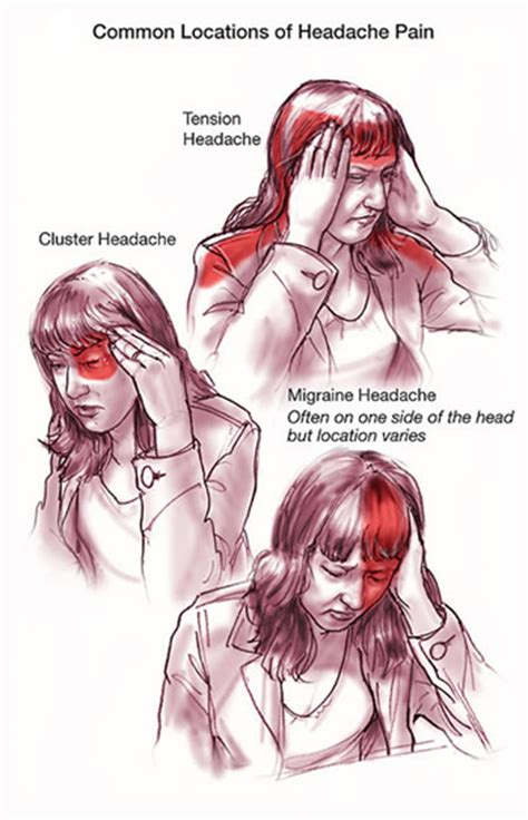 headaches and forehead stiffness in diabetics is this picture 10