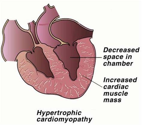 feline hyperthyroid heart mumur picture 5