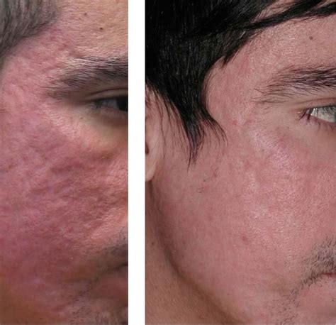 acne scar lazer surgery picture 14