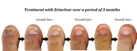 zetaclear how does it work picture 1