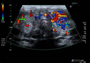 thyroid ultrasound blue red cancer picture 3