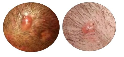 what causes recurring pimple like growths on the picture 4