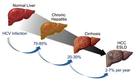 chronic liver disease picture 9