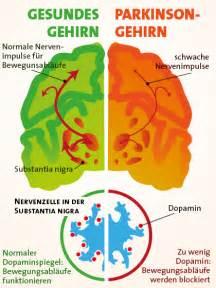 nathan zakheim disease picture 9