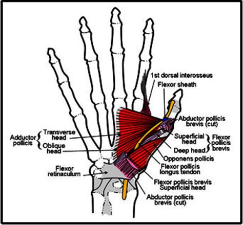 thumb joint pain picture 1
