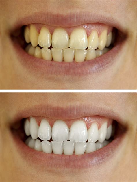 tooth whitening san francisco picture 2