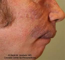 denver laser hair removal picture 13