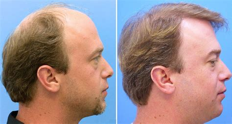 cost of hair transplants picture 2