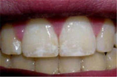 calcium teeth white picture 8