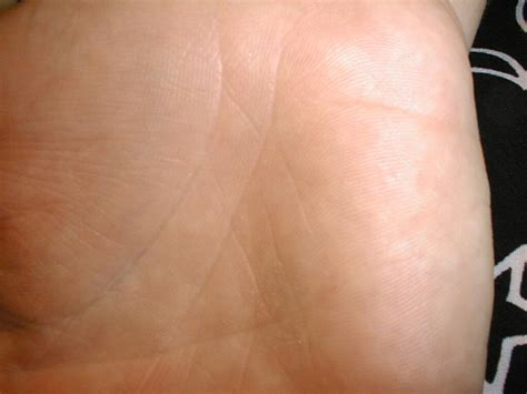 symptoms tiny warts on palm picture 2