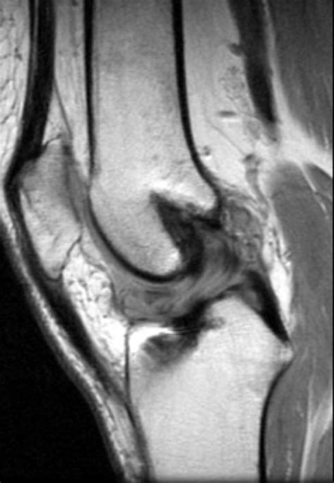 cyclops lesion knee joint picture 11