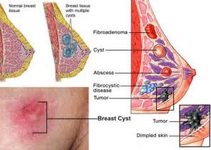 herbal to cure for breast cyst picture 3