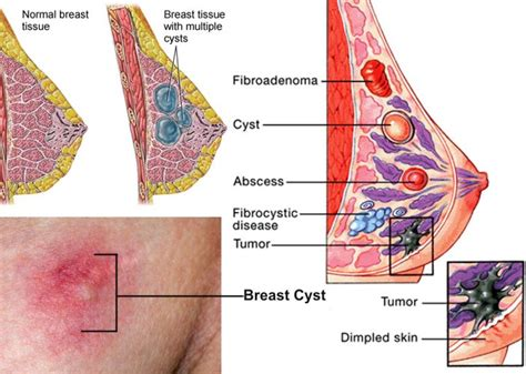 fenugreek to cure breast cysts picture 3