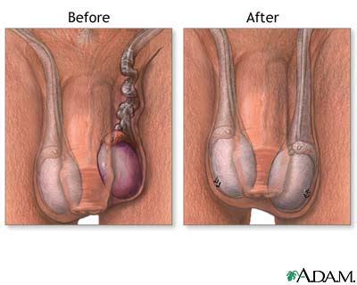 testosterone cream scrotum picture 6