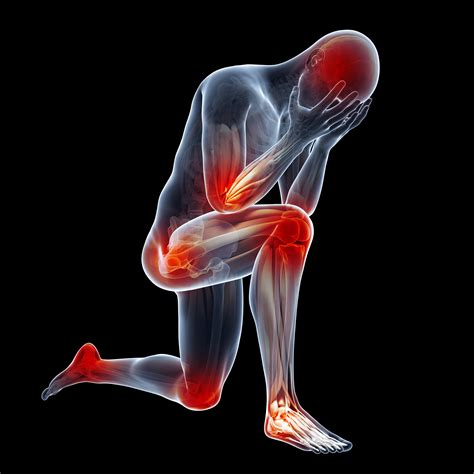 causes of body joint pain inflammation picture 7
