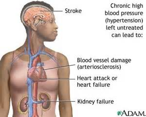 Sign and symptoms of high blood pressure picture 1