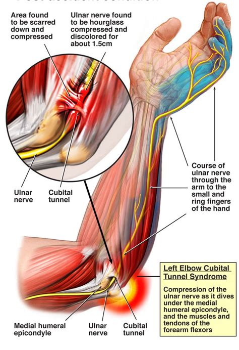 can tarcel tunnel syndrome give u pain in picture 16