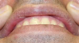 calcium deposits lips picture 10