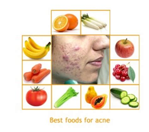 food cures for acne picture 9