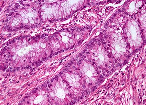 Colon cancer causes picture 3