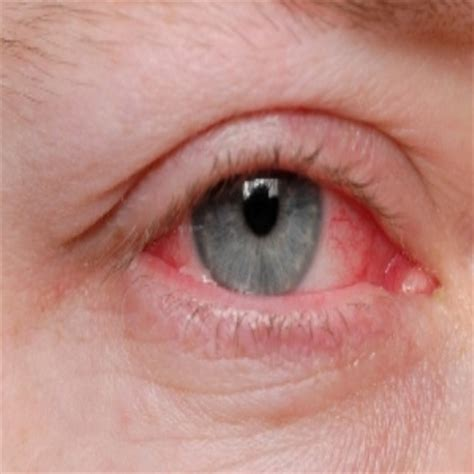 chinese herb for eye infection picture 11