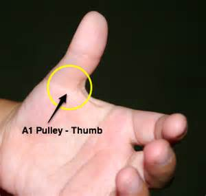 home remedies for knuckle pain picture 6