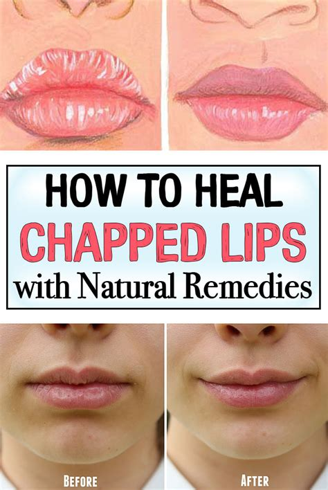 How to heal chapped lips picture 1