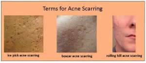 cover acne pit scar skin picture 6