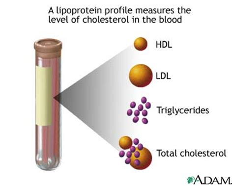 cholesterol blood test picture 11