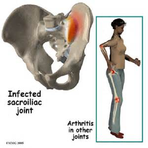 pain the the hip joint picture 17
