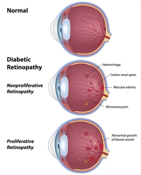 diabetic eye identity kit picture 2