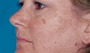 skin sun spots picture 13