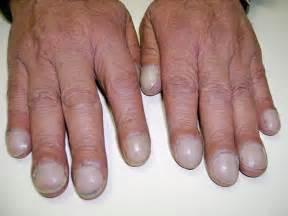 long fingernails hole insertion picture 11