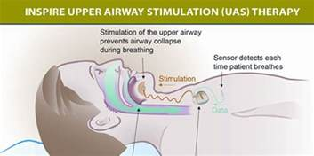 sleep apnea cures picture 9