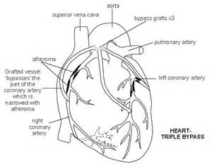 heart arteries diagram picture 3