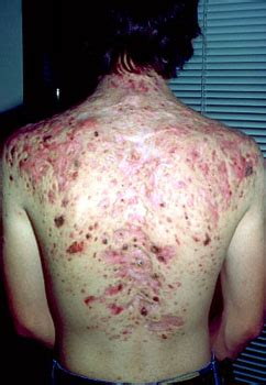 men back acne picture 2